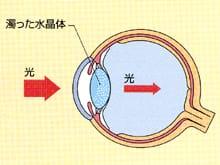 目薬 白内障